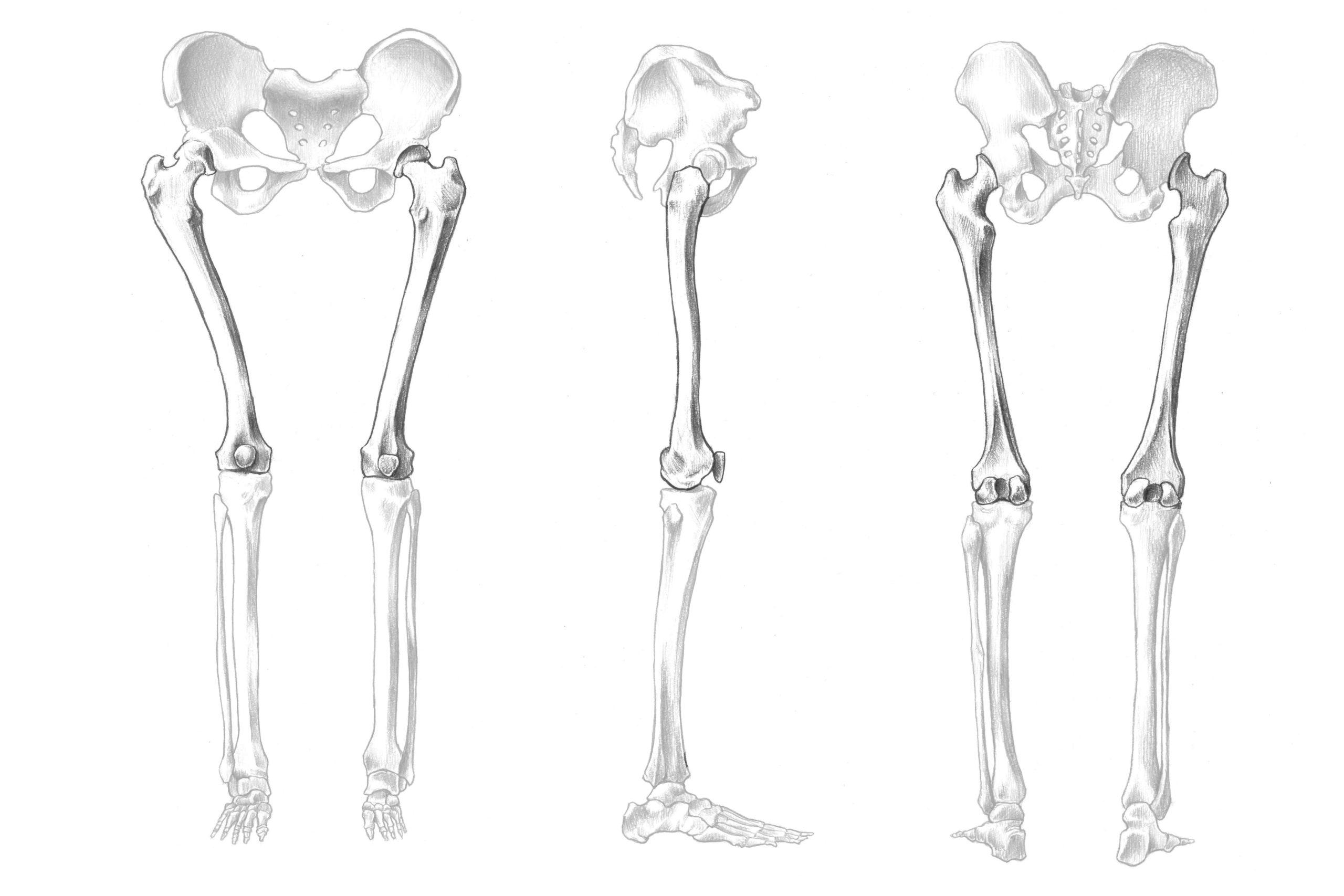 大腿骨の位置